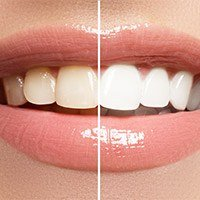 Teeth half before and half after whitening