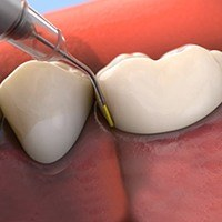 Damaged teeth and gums receiving treatment