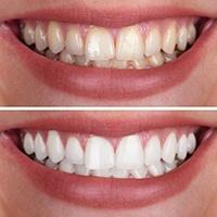 Teeth Whitening Bellevue Brighter Smiles Bellevue Family